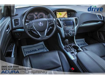 2018 Acura TLX Tech (Stk: AP5013) in Pickering - Image 2 of 30
