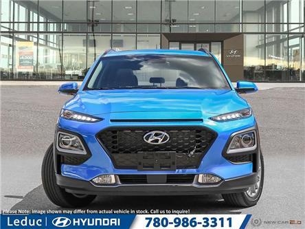 2019 Hyundai Kona 2.0L Luxury (Stk: 9KO0769) in Leduc - Image 2 of 23