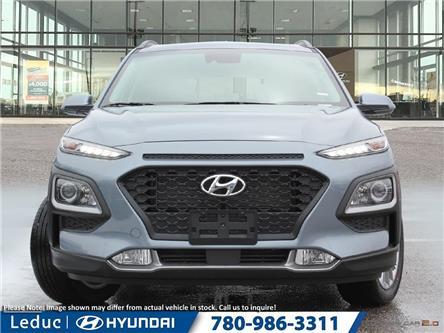 2020 Hyundai Kona 2.0L Luxury (Stk: 20KO8694) in Leduc - Image 2 of 23