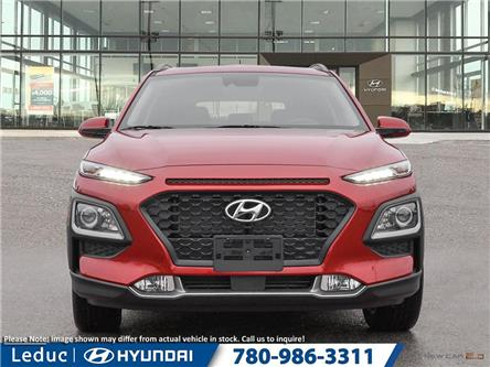 2020 Hyundai Kona 2.0L Preferred (Stk: 20KO8118) in Leduc - Image 2 of 23