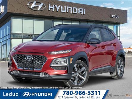 2020 Hyundai Kona 1.6T Trend w/Two-Tone Roof (Stk: 20KO5566) in Leduc - Image 1 of 23