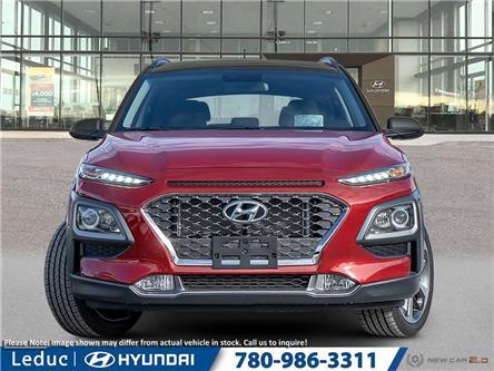 2020 Hyundai Kona 1.6T Trend w/Two-Tone Roof (Stk: 20KO5566) in Leduc - Image 2 of 23