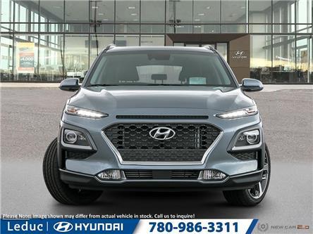 2020 Hyundai Kona 1.6T Ultimate (Stk: 20KO2955) in Leduc - Image 2 of 23
