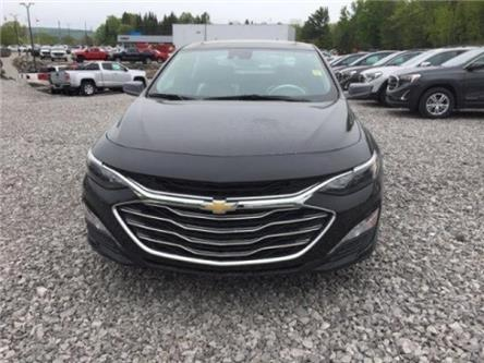 2019 Chevrolet Malibu LT (Stk: 19631) in Haliburton - Image 2 of 10
