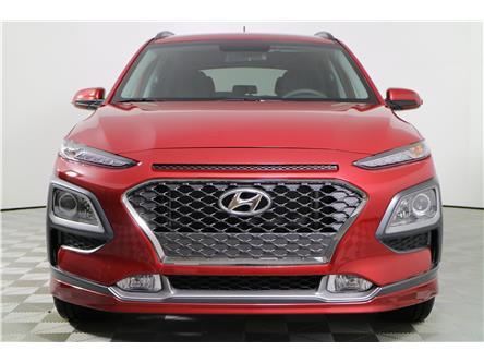 2020 Hyundai Kona 1.6T Trend (Stk: 195130) in Markham - Image 2 of 22