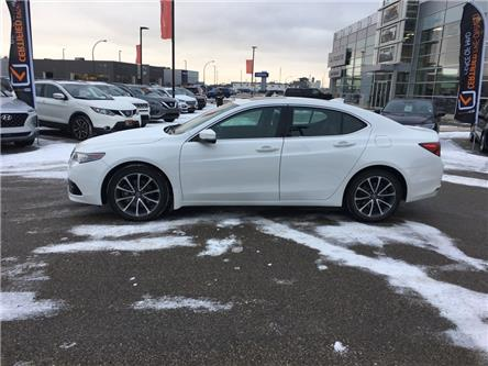 2015 Acura TLX Base (Stk: A4085) in Saskatoon - Image 2 of 14