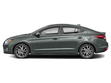 2020 Hyundai Elantra Ultimate (Stk: HA9-9996) in Chilliwack - Image 2 of 9