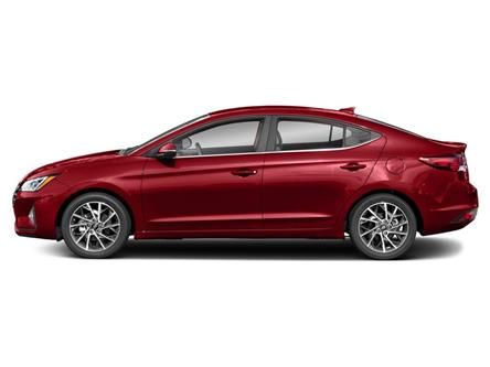 2020 Hyundai Elantra Ultimate (Stk: 120-099) in Huntsville - Image 2 of 9