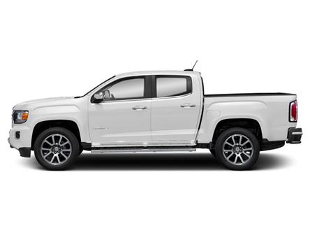 2020 GMC Canyon Denali (Stk: 200106) in North York - Image 2 of 9
