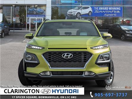 2020 Hyundai Kona 1.6T Ultimate w/Lime Colour Pack (Stk: 19895) in Clarington - Image 2 of 24
