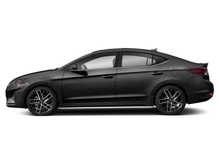 2020 Hyundai Elantra Sport (Stk: 000202) in Milton - Image 2 of 9