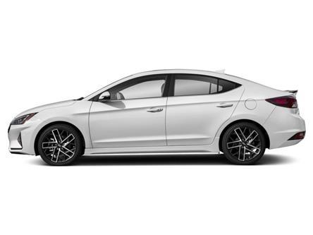 2020 Hyundai Elantra Sport (Stk: 002338) in Milton - Image 2 of 9