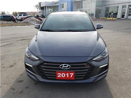 2017 Hyundai Elantra Sport (Stk: Z415464A) in Newmarket - Image 2 of 28