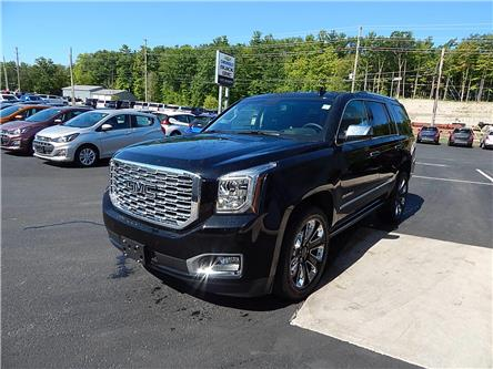 2020 GMC Yukon Denali (Stk: 20010) in Campbellford - Image 2 of 18