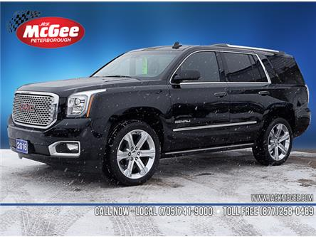 2016 GMC Yukon Denali (Stk: 20023A) in Peterborough - Image 1 of 25