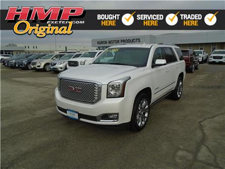 2016 GMC Yukon Denali (Stk: 73520) in Exeter - Image 1 of 30