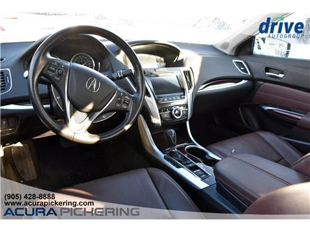 2015 Acura TLX Tech (Stk: AP5065) in Pickering - Image 2 of 32