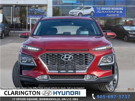 2020 Hyundai Kona 1.6T Trend (Stk: 19976) in Clarington - Image 2 of 24