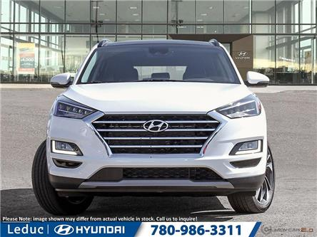 2020 Hyundai Tucson Ultimate (Stk: 20TC4810) in Leduc - Image 2 of 23