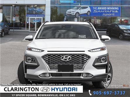 2020 Hyundai Kona 1.6T Ultimate (Stk: 20002) in Clarington - Image 2 of 24