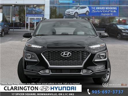2020 Hyundai Kona 1.6T Ultimate (Stk: 20003) in Clarington - Image 2 of 24