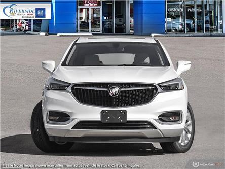 2020 Buick Enclave Essence (Stk: 20-094) in Brockville - Image 2 of 23