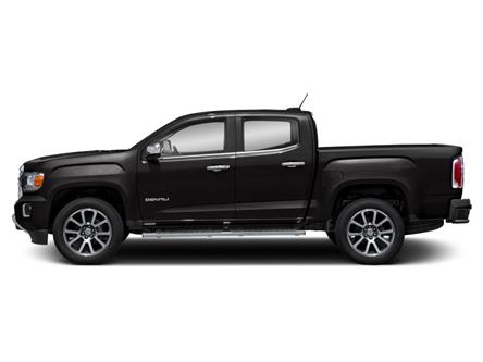 2020 GMC Canyon Denali (Stk: L1150652) in Toronto - Image 2 of 9