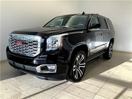 2020 GMC Yukon Denali (Stk: 0394) in Sudbury - Image 1 of 26