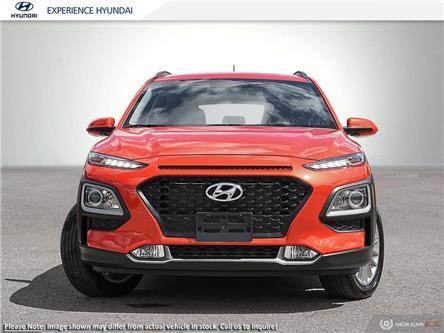 2020 Hyundai Kona 2.0L Preferred (Stk: N597) in Charlottetown - Image 2 of 23