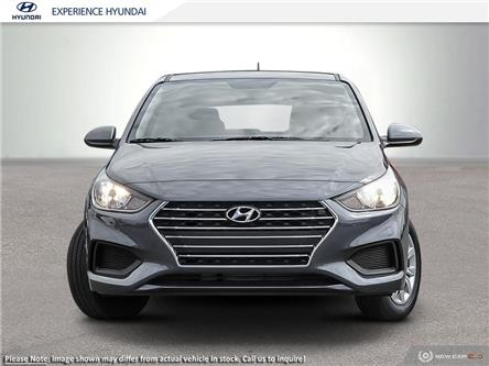 2020 Hyundai Accent Essential w/Comfort Package (Stk: N723) in Charlottetown - Image 2 of 23