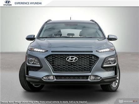 2020 Hyundai Kona 2.0L Preferred (Stk: N634) in Charlottetown - Image 2 of 23