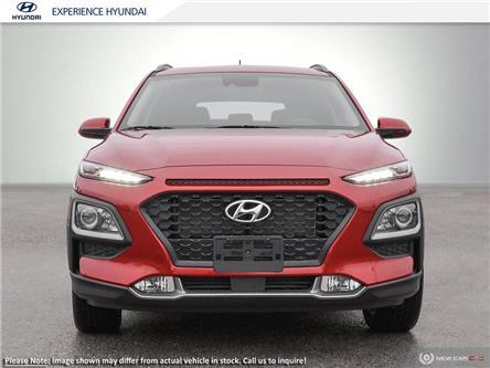 2020 Hyundai Kona 2.0L Preferred (Stk: N594) in Charlottetown - Image 2 of 23