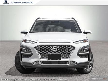 2020 Hyundai Kona 1.6T Ultimate (Stk: N645) in Charlottetown - Image 2 of 23