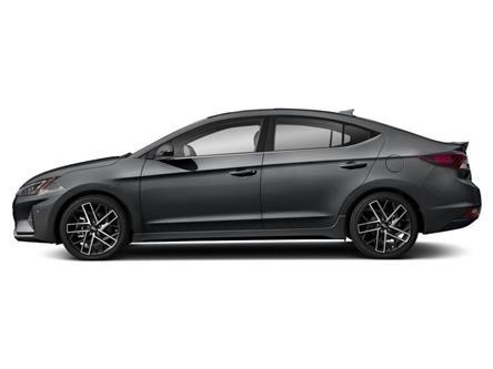 2020 Hyundai Elantra Sport (Stk: R20279) in Brockville - Image 2 of 9