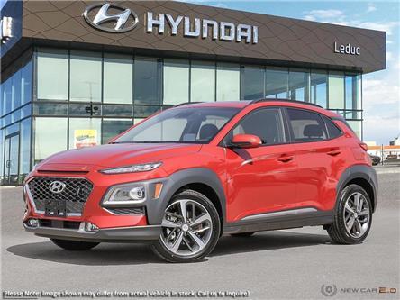 2020 Hyundai Kona 1.6T Ultimate (Stk: 20KO5867) in Leduc - Image 1 of 23