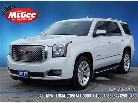 2017 GMC Yukon Denali (Stk: 20008A) in Peterborough - Image 1 of 20
