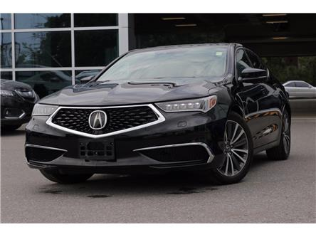 2018 Acura TLX Tech (Stk: P19193) in Ottawa - Image 1 of 26