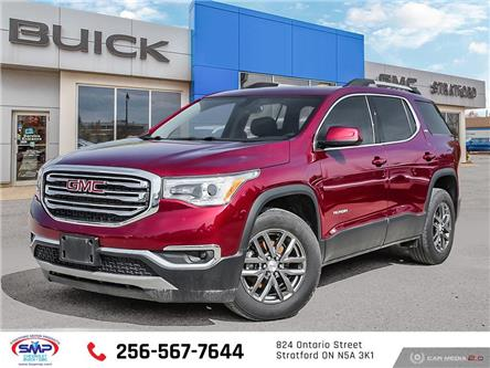 2017 GMC Acadia SLT-1 (Stk: T3472A) in Stratford - Image 1 of 27