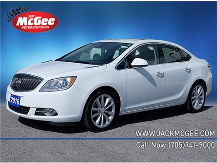 2016 Buick Verano Leather (Stk: P82921) in Peterborough - Image 1 of 18