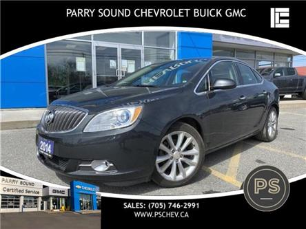 2014 Buick Verano Base (Stk: 20-087A) in Parry Sound - Image 1 of 15