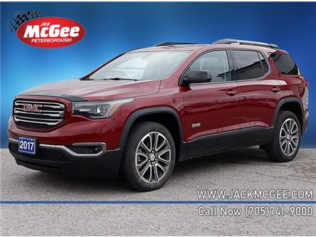 2017 GMC Acadia SLT-1 (Stk: ) in Peterborough - Image 1 of 11