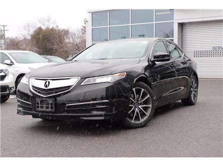 2017 Acura TLX Base (Stk: P1694) in Ottawa - Image 1 of 26
