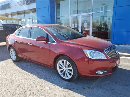 2016 Buick Verano Leather (Stk: 3590A) in Hawkesbury - Image 1 of 18