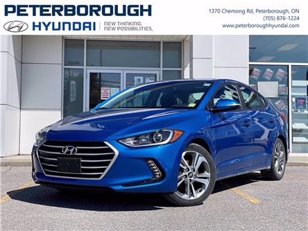 2017 Hyundai Elantra SE (Stk: HP0175) in Peterborough - Image 1 of 29