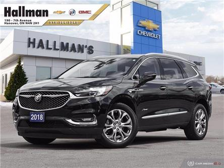2018 Buick Enclave Avenir (Stk: P1749) in Hanover - Image 1 of 29