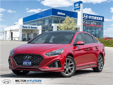 2018 Hyundai Sonata 2.0T Sport (Stk: 618966) in Milton - Image 1 of 25
