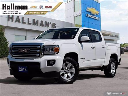 2018 GMC Canyon  (Stk: P1763) in Hanover - Image 1 of 27
