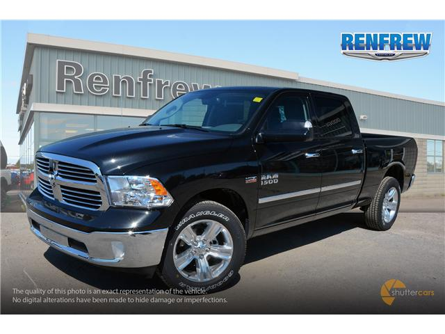 2017 RAM 1500 SLT (Stk: SLH175) in Renfrew - Image 2 of 20
