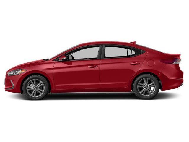 2018 Hyundai Elantra GLS (Stk: 57171) in Kitchener - Image 2 of 9