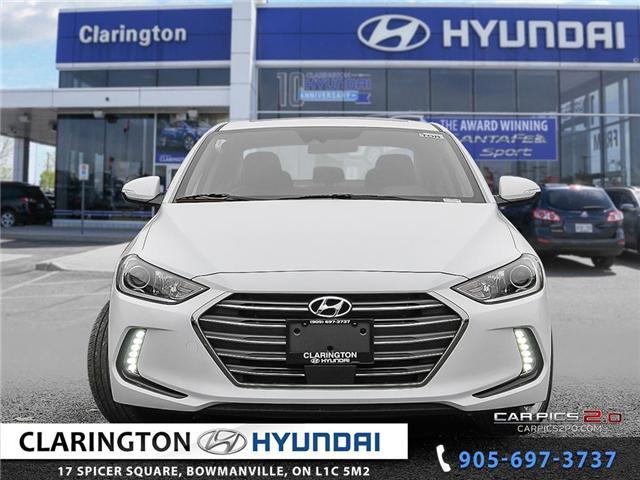 2018 Hyundai Elantra GLS (Stk: 17888) in Clarington - Image 2 of 27